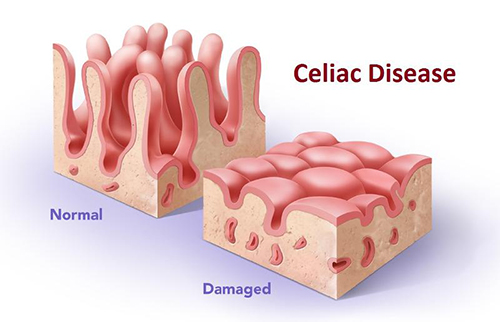 What Is Chronic Inflammation And How Does Celiac Disease